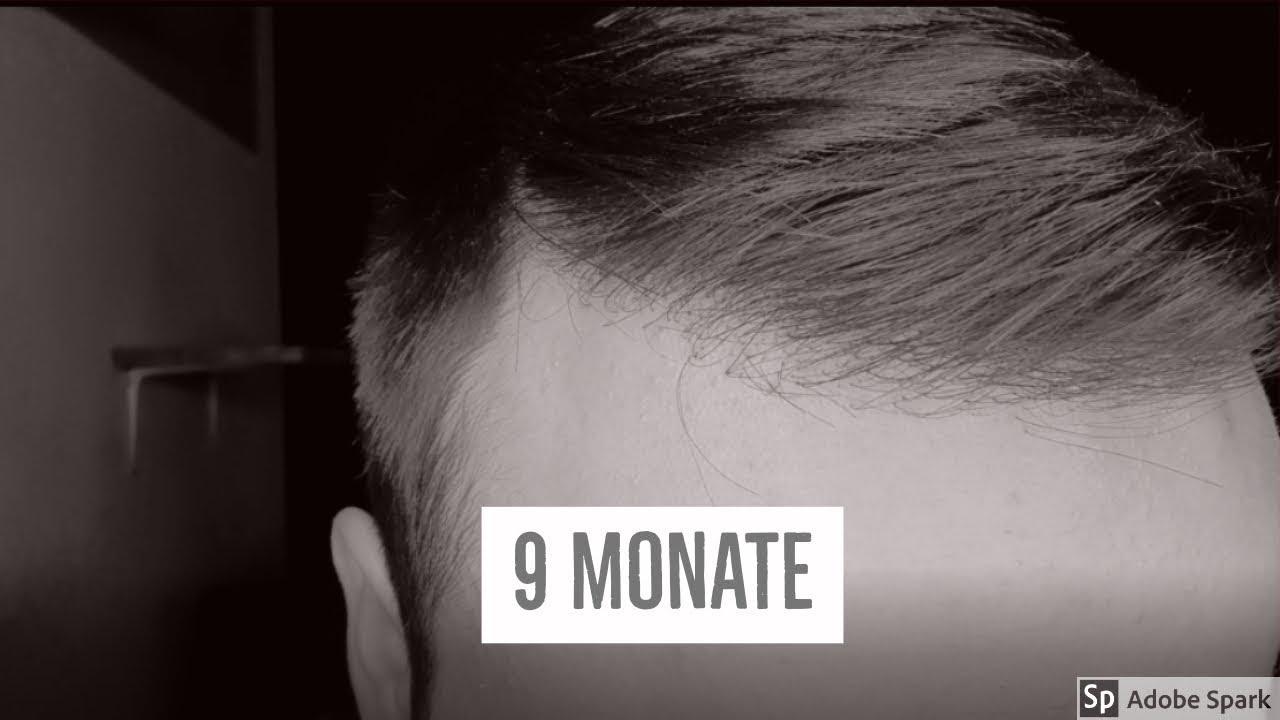 Haartransplantation Deutschland Ergebnis Vorher Nachher 9 Monate | Haare Gefärbt