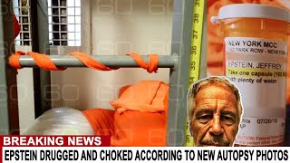 BREAKING: EPSTEIN WAS DRUGGED AND CHOKED ACCORDING TO NEW AUTOPSY PHOTOS