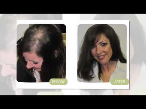Regrow My Hair Without Smelly Onions Garlic Or Ginger