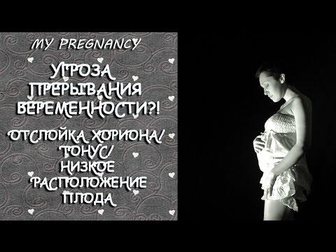УГРОЗА ПРЕРЫВАНИЯ БЕРЕМЕННОСТИ?!/ОТСЛОЙКА ХОРИОНА/ТОНУС/НИЗКОЕ РАСПОЛОЖЕНИЕ ПЛОДА