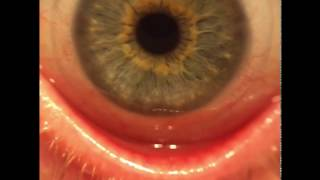 Micro view- Astigmatism Contact lense removal and insertion. Acuvue Oasys w/ hydraclear plus