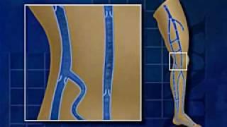 Vidéo sur le reflux veineux