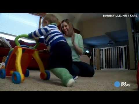 Toddler shocks everyone 4 days after leg amputation