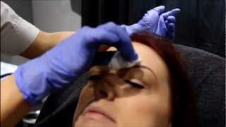 Facial Rejuvenation Clinic - Botox Clapham London Thumbnail