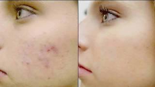 видео Как быстро и эффективно восстановить кожу после выдавленного прыща