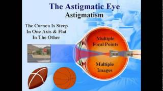 Astigmatism Of The Eye