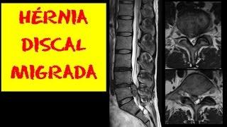 Mostra problema ciático nervo ressonância no magnética
