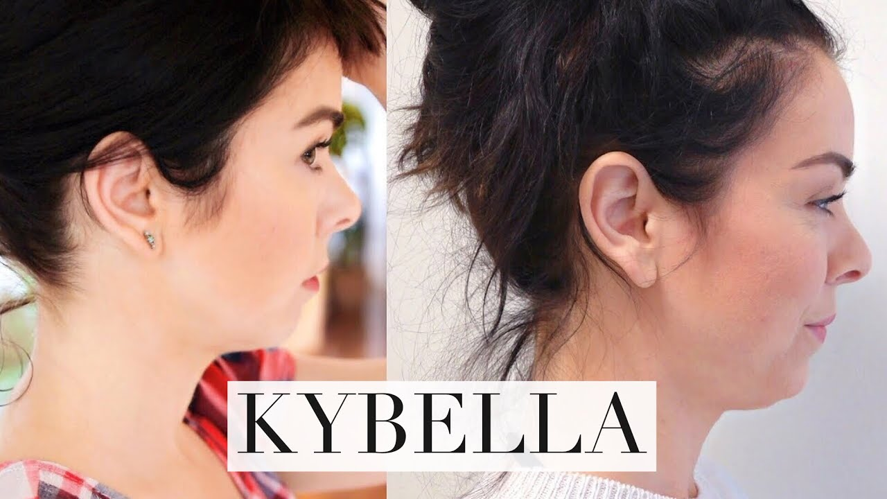 My Kybella Experience!