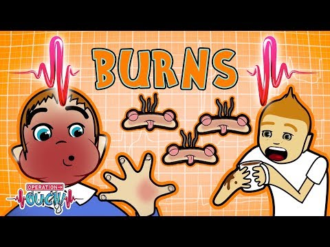 Operation Ouch - Burns & Skin Grafts | Human Skin