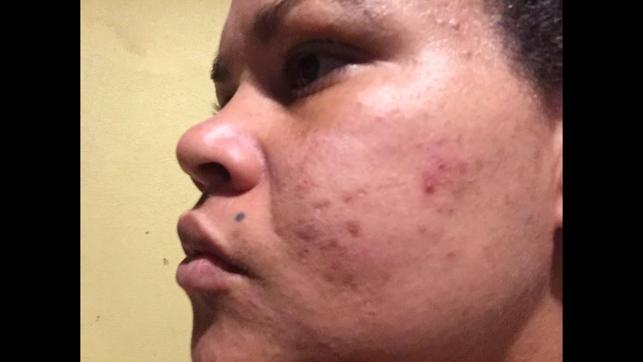 como eliminar manchas en la piel por acne