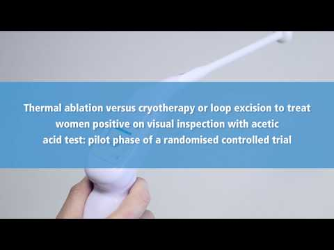 New IARC study: Thermal ablation versus cryotherapy or loop excision to treat cervical precancer