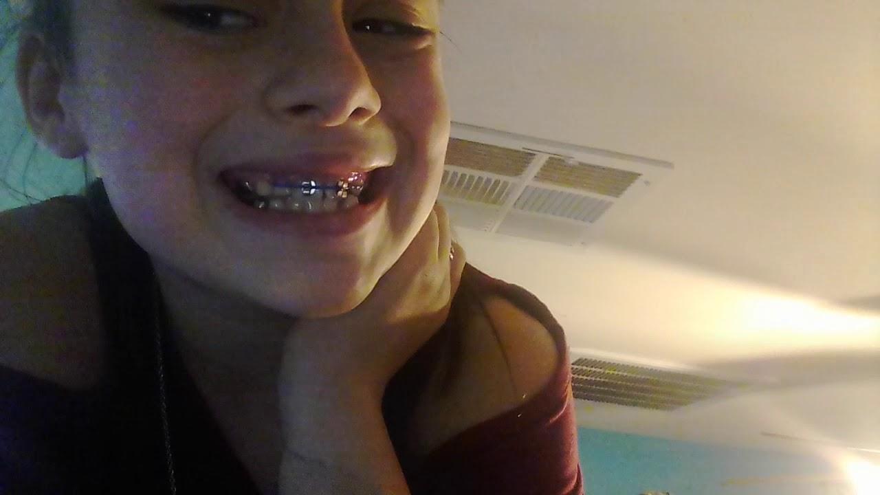Fake braces! / super fun and easy make you look super cute!!!!!!!!!!!!!!