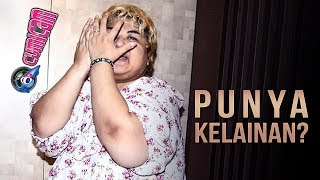 Pretty Asmara Punya Kelainan? - Cumicam 25 Juli 2017