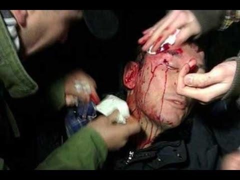 В Пушкино избит активист!