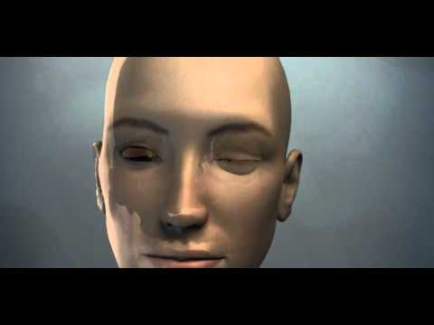 3D Medical Animation - Human Brain