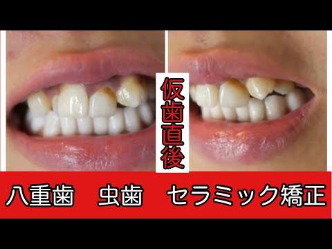 意外に人は歯を見ていると思った