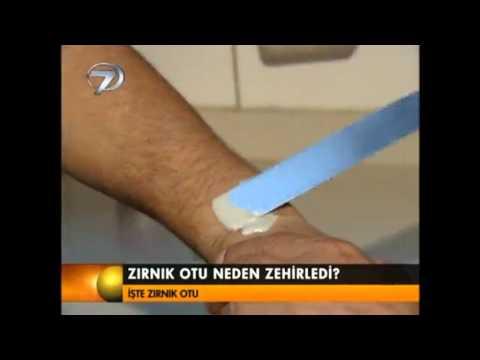 Kanal 7 Ana Haber Hamam Otu Nedir?