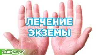 Экзема. Лечение экземы. Как лечить кожные заболевания? Совет от Михаила Советова