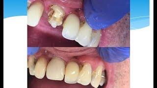 как вырастить зуб за один час