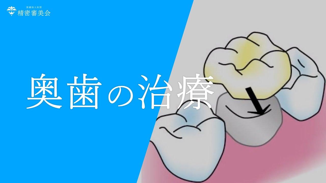 歯に被せ物をして、奥歯の治療 ...