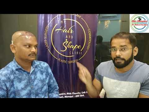 interview-of-hair-transplant-surgery-paitent---live-interview