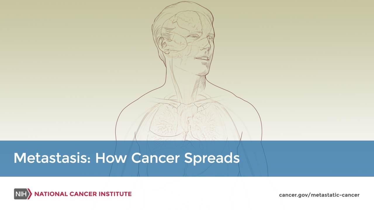 Adult Primary Liver Cancer Treatment (PDQ®)–Patient Version