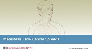 Metastasis: How Cancer Spreads