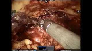 Ρομποτική ριζική κυστεκτομή με δημιουργία εγκρατούς ορθότοπης νεοκύστης