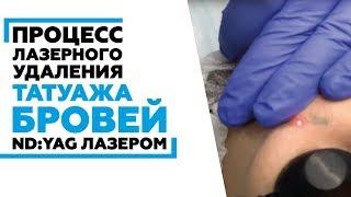 видео Неудачный татуаж бровей: исправление несколькими эффективными методами