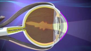 Astigmatism Treatment & Surgery Atlanta, GA.