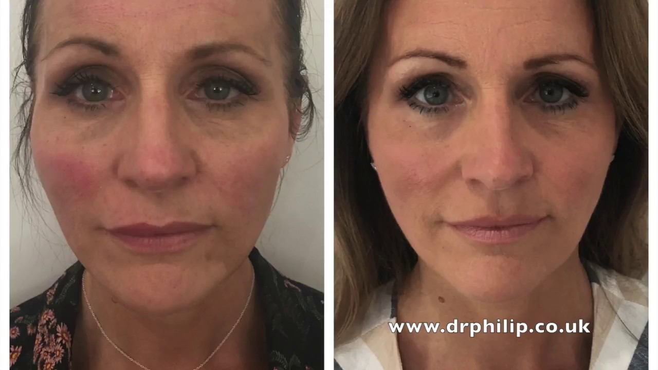 Introducing Profhilo The Airbrushed Look by Light Touch Clinic