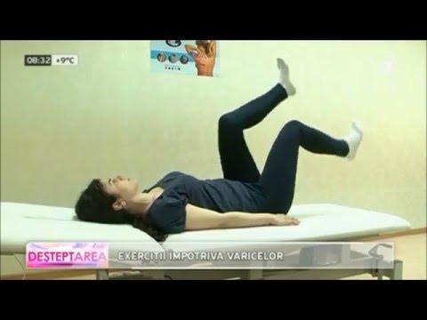 Gimnastica cu vene varicoase ale pelvisului video ,sigilii varicoase sub piele