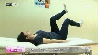 exerciții împotriva venelor varicoase pe picioarele videoclipului