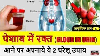 पेशाब में खून आने के लिए 2 घरेलू उपाय | Blood in Urine Ayurvedic Home Remedies - HEALTH JAGRAN
