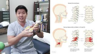 Thoracic Outlet Syndrome | Carpal Tunnel | Neck Pain | Do You Have the Lin Defect?