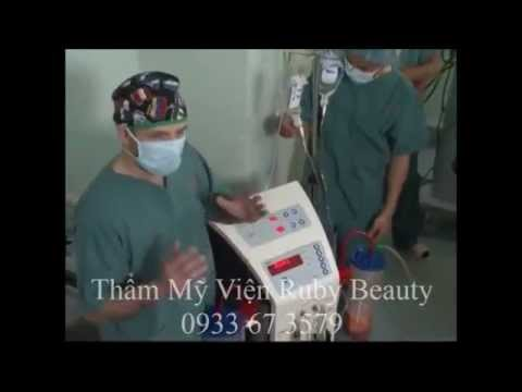 Ruby Beauty, Hut mo gay cuoi Lipomatic, Hut mo khong phau thuat