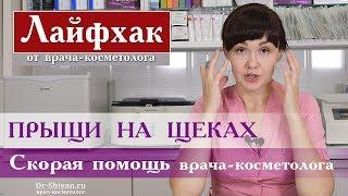 Прыщи на щеках Лайфхак от врача косметолога