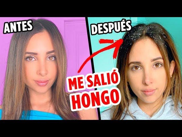 UNA SEMANA SIN LAVARME EL CABELLO – ME SALIO HONGO? | Mariale