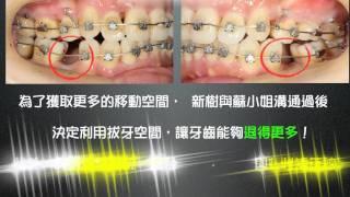 【新樹矯正】牙齒矯正真簡單,暴牙不是問題,玩美矯正我們都可以!