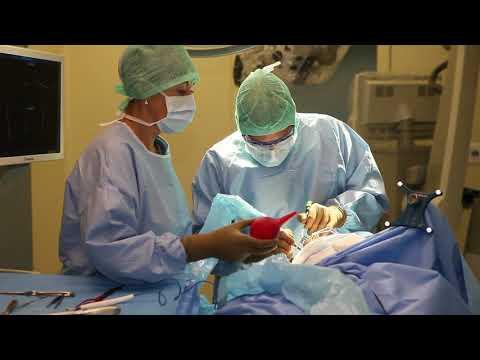Удаление менингиомы. Нейрохирург Реутов А.А.