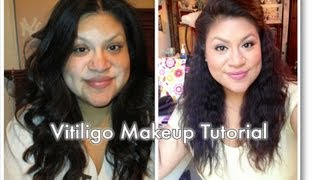 Vitiligo Spots Talk and Makeup Tutorial