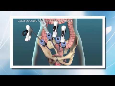 Pelvic Prolapse Repair