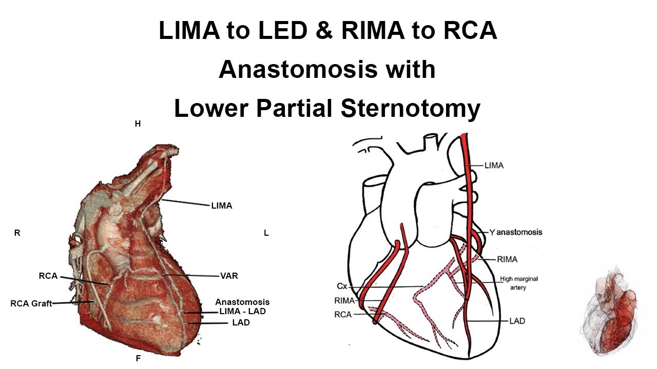 Lima Anatomy Diagram - Residential Electrical Symbols •
