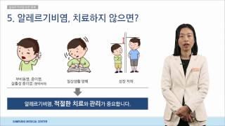 알레르기 완전 정복_소아청소년과 김지현 교수[의료진 ON Line 강의]