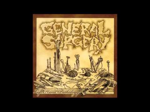 General Surgery - Left Hand Pathology (2006) Full Album