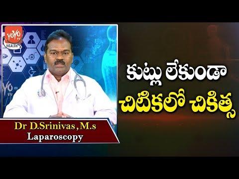 కుట్లు-లేకుండా-చిటికలో-చికిత్స-|-laparoscopy-treatment-|-telugu-health-tips-|-yoyo-tv-health