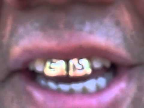 Mexican Gold Teeth