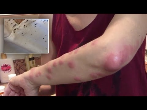 Woman Severely Bitten By Bedbugs At Atlantis Paradise Island Sues Resort