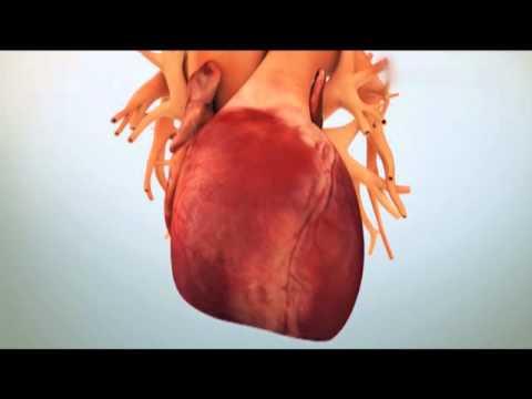 Болит сердце после инфаркта и стентирования