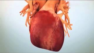 тромбоз: как сохранить стент. Профилактика инфаркта